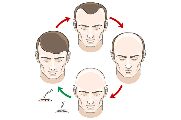 hair-cycle-1